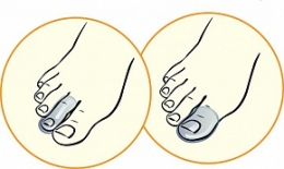 Силиконовый протектор для пальцев (колпачок) Talus
